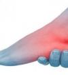 تورم القدمين مؤشر للإصابة بأمراض خطيرة