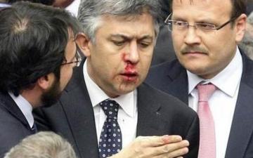 بالصور..شجار عنيف بين نواب بالبرلمان التركي..ونقل عضو للمستشفى