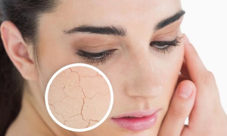 نصائح للتخلص من جفاف بشرتكِ في رمضان