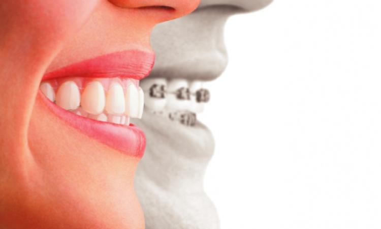 الأسنان سر آلام الرقبة والركبة