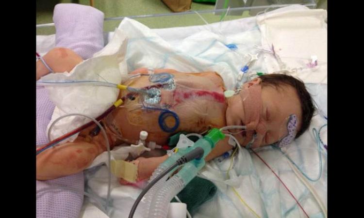 طفلة تجرى أول عملية جراحية لها بعد 3 ساعات من الولادة