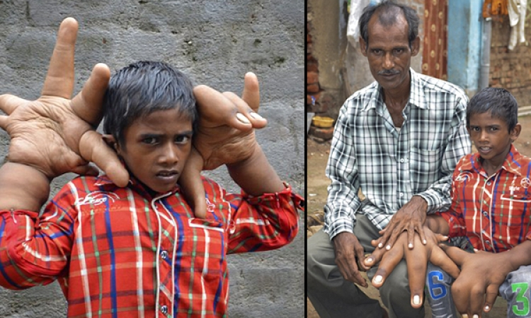 طفل هندي بذراعين ويدين عملاقتين