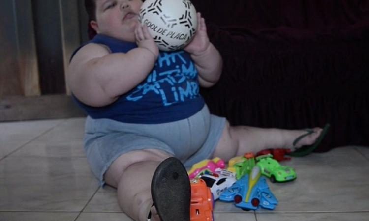 صبي في الثالثة من العمر يزن 70 كيلوجراماً