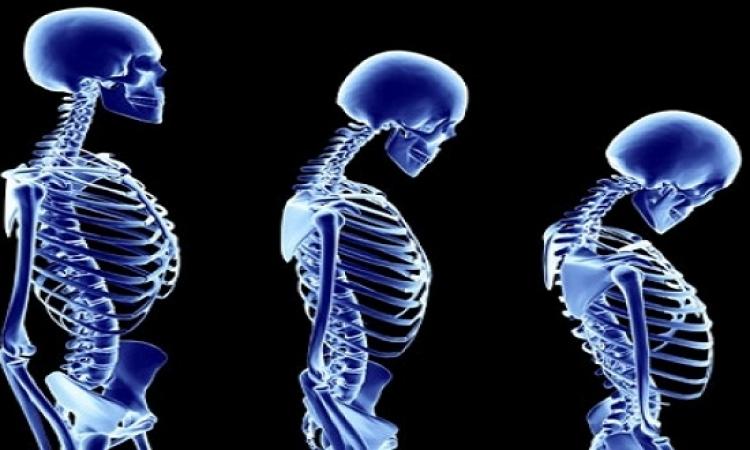 تجنب 7 أسباب مباشرة لهشاشة العظم
