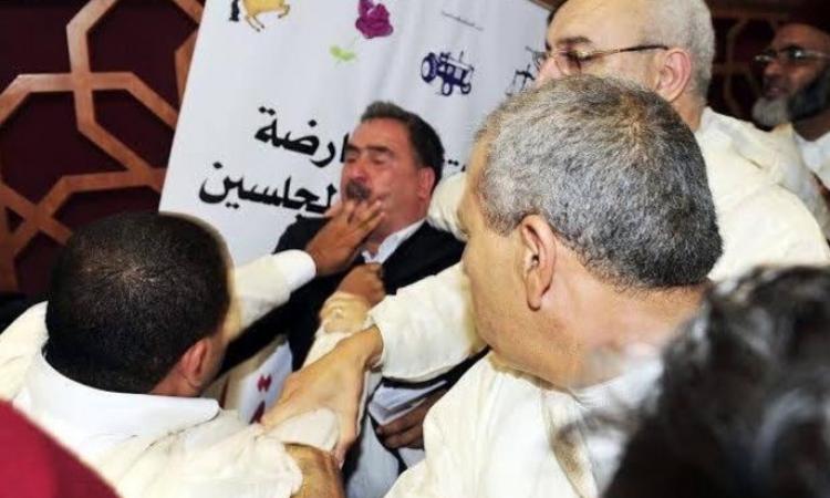 بالصور.. برلماني مغربي يعض إصبع زميله تحت قبة المجلس