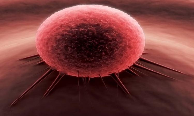 7 خطوات للوقاية من مرض السرطان