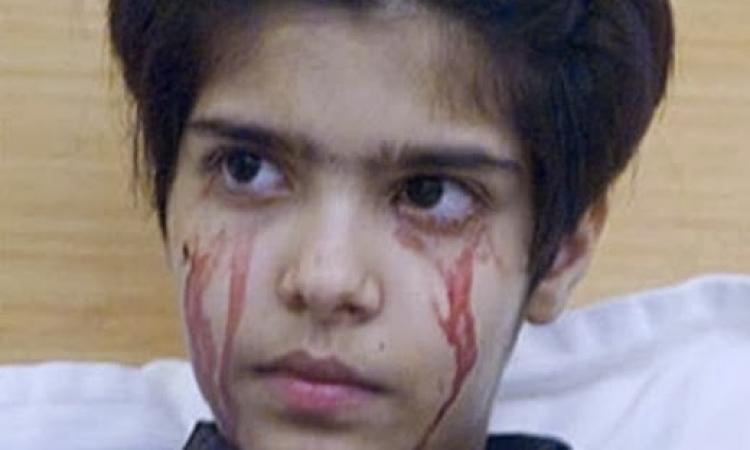 """بالفيديو.. طفلة تبكى بدل الدموع """"دم"""""""