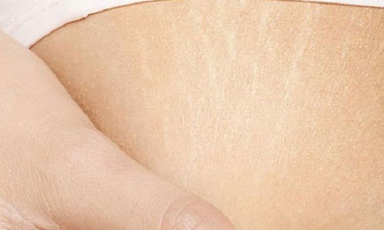 اليكى افضل 5 طرق فعالة للتخلص من تشققات الجسم