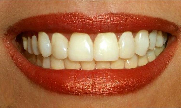 تعرف على خطوات إزالة جير الأسنان وجعلها ناصعة البياض