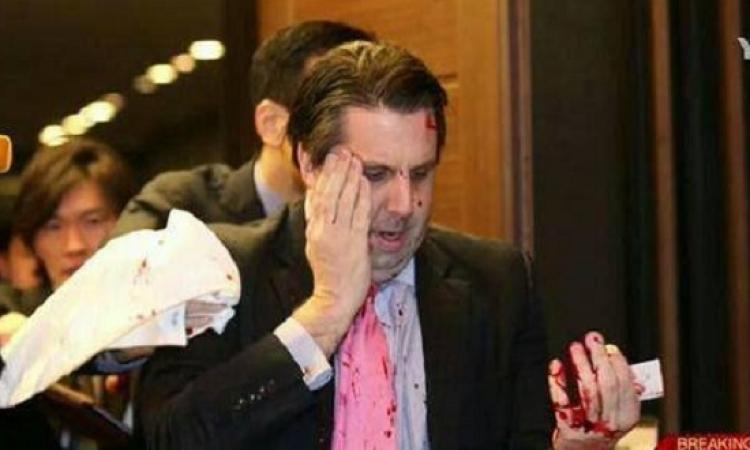 بالفيديو .. لحظة الهجوم المسلح على السفير الأمريكى فى كوريا الجنوبية
