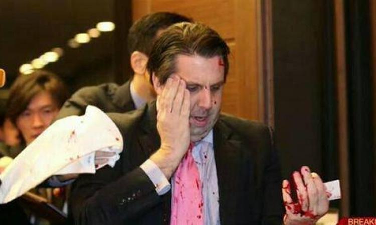 عاجل .. إصابة السفير الأمريكى بكوريا الجنوبية بجروح خطيرة