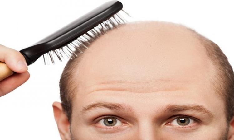 التخلص من تساقط الشعر عند الرجال