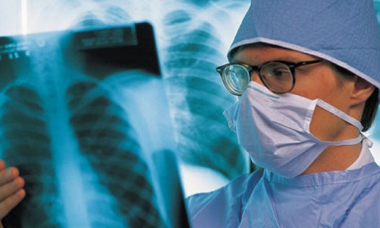 لقاح كوبي مضاد لسرطان الرئة