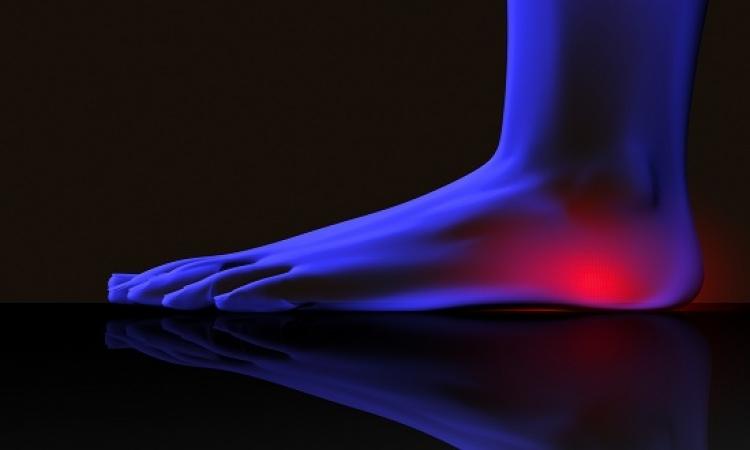 طرق معالجة مسمار الكعب وآلام القدمين