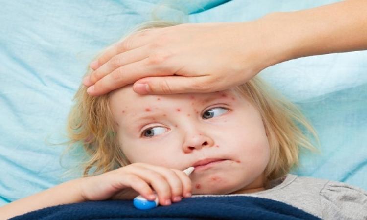 الحصبة تُضعف مناعة طفلك