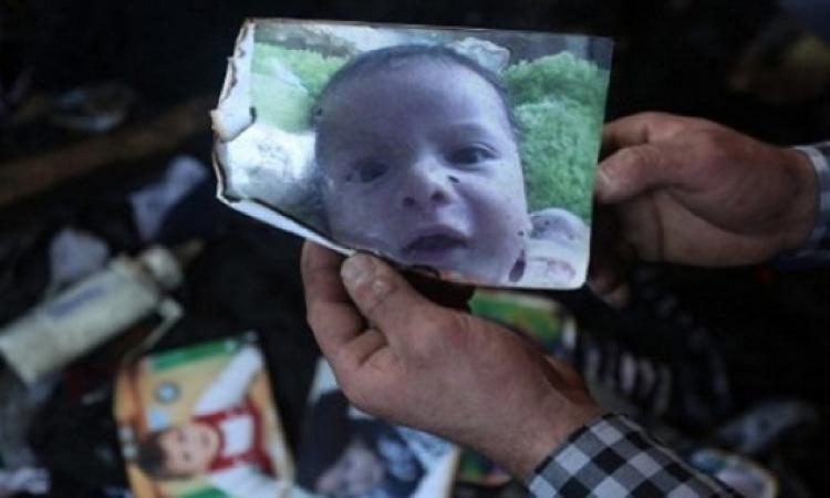 وفاة الدوابشة والد الرضيع الفلسطينى الذى قضى حرقا .. ربنا رحمه!!