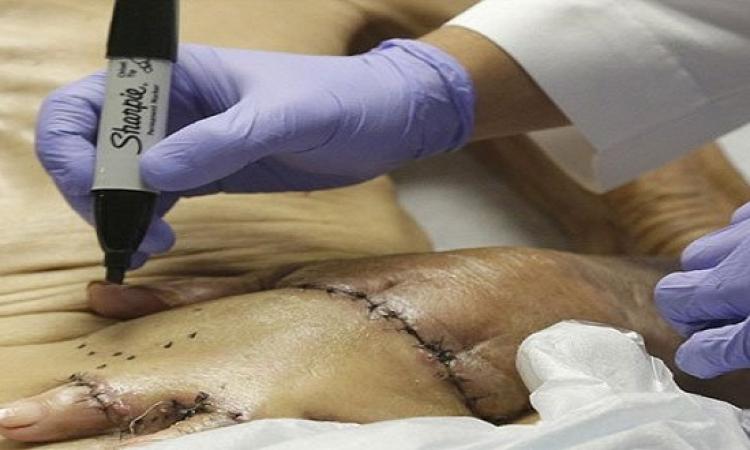 أطباء يثبتون يد عجوز ببطنه لحين يتم شفائها