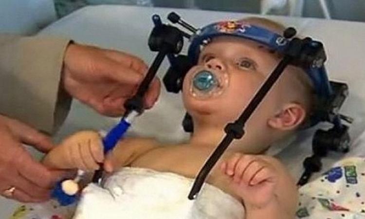 معجزة طبية  لأسوء عملية فى التاريخ إعادة رأس طفل إلى عنقه مره اخرى