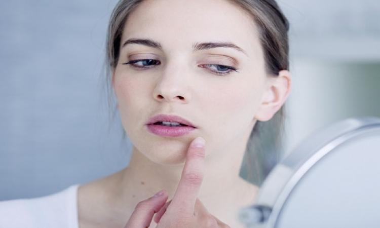 5 طرق طبيعية للتخلص من وحمة الجلد