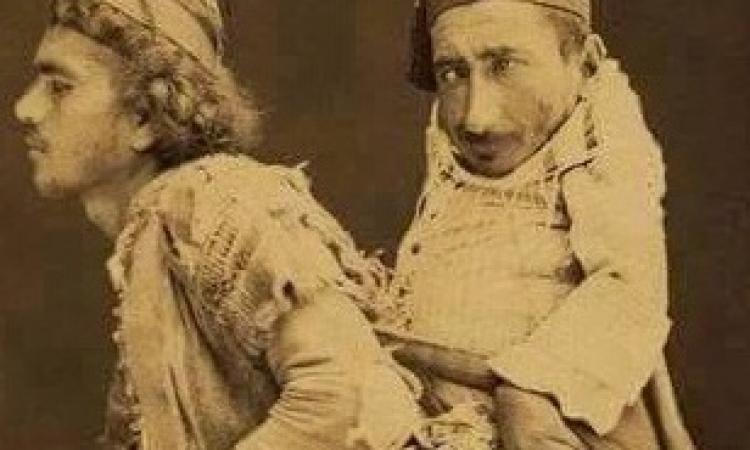"""حكاية القزم المشلول """"سمير"""" والطويل الأعمى """"محمد"""""""