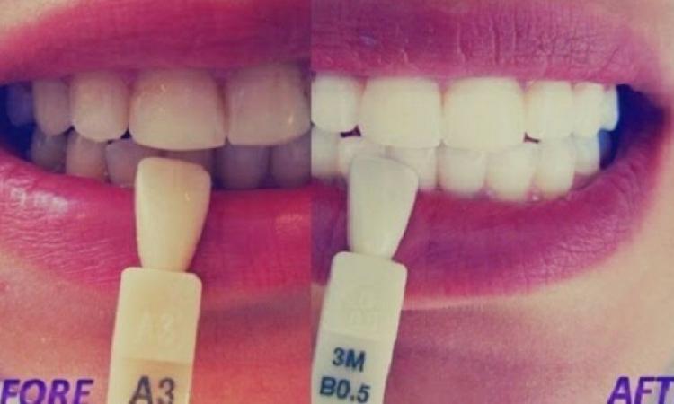 وصفة مجربة وفعالة لتبيض الأسنان دون الذهاب للطبيب !!