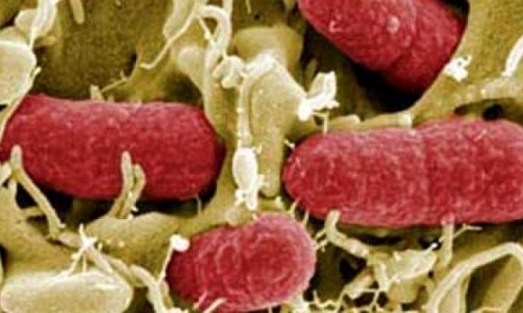 """البكتريا المعوية """"إى كولاى"""" تتفشى فى 9 ولايات أمريكية"""