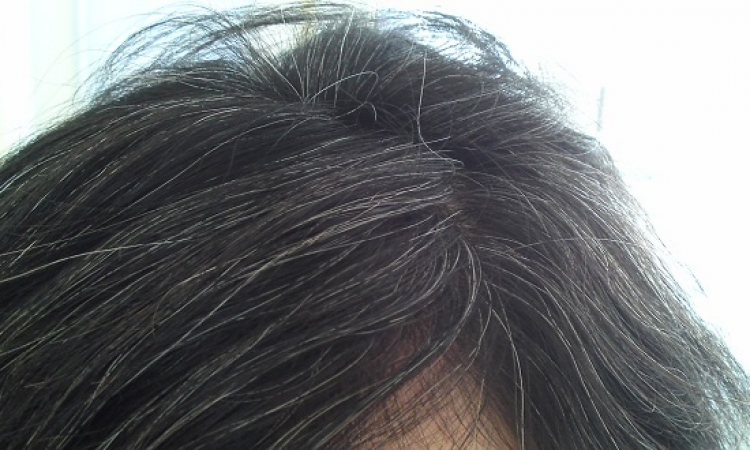 6 وصفات منزلية بسيطة للتخلص من الشعر الأبيض