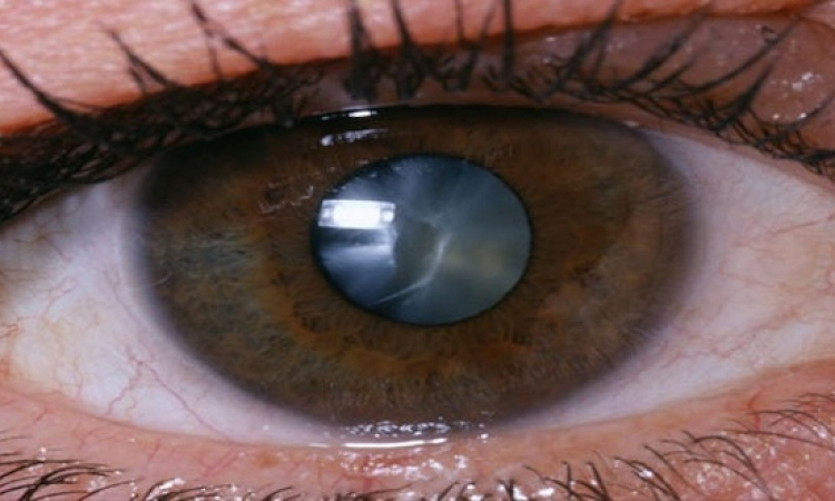 تعتيم عدسة العين.. أسبابها وطريقة علاجها