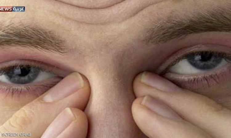 الحساسية قد تزيد احتمالات القلق والاكتئاب