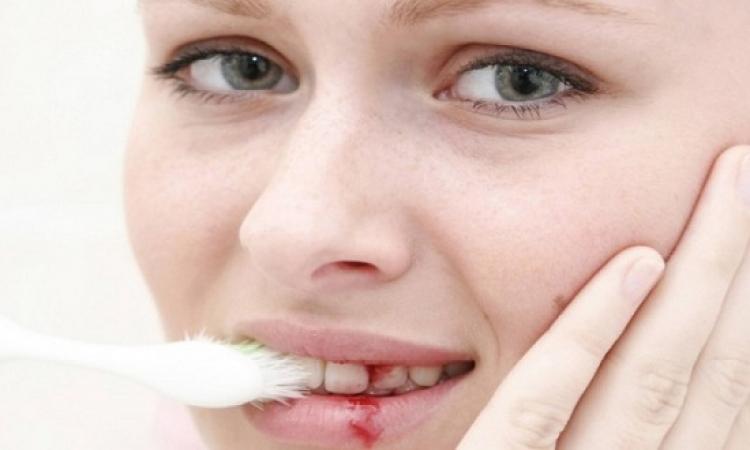 ماذا يدل نزيف اللثة المتكرر أثناء تنظيف الأسنان؟!