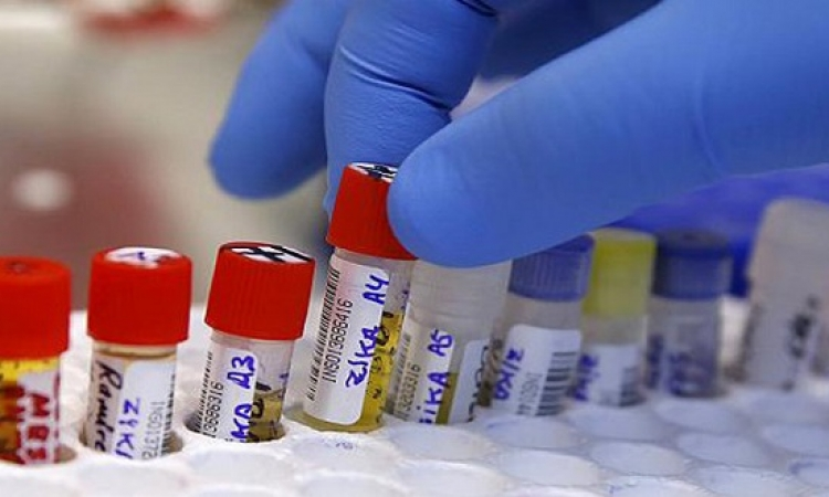 ابتكار اختبار سريع للكشف عن فيروس زيكا