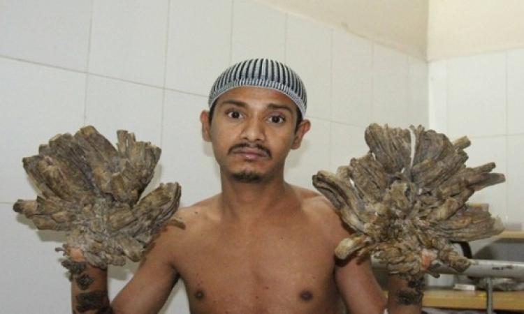 بالفيديو .. الرجل الشجرة يخضع لعملية جراحية ناجحة فى يده اليمنى