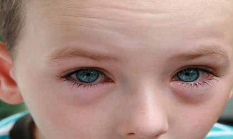 طفل يفقد بصره بسبب شىء موجود فى كل البيوت