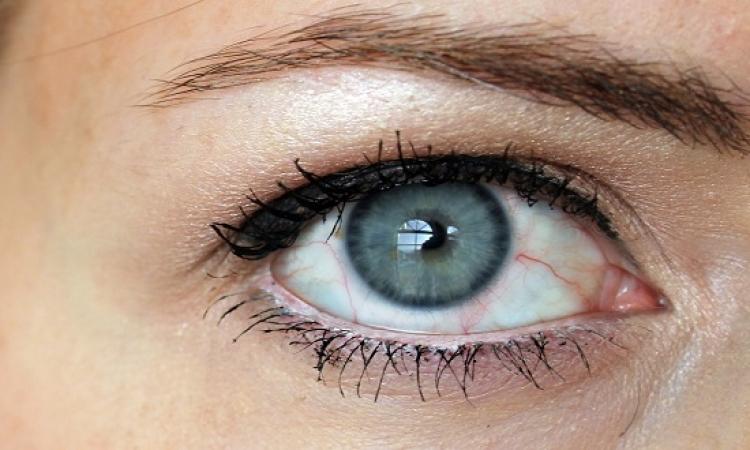 هل تعود المياه البيضاء إلى العين بعد الجراحة ؟