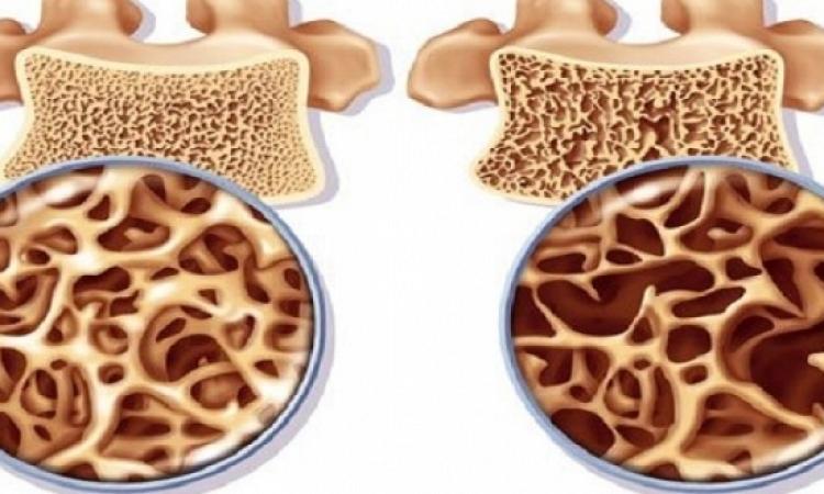 حقن الخلايا الجذعية لعلاج هشاشة العظام خلال 6 أشهر