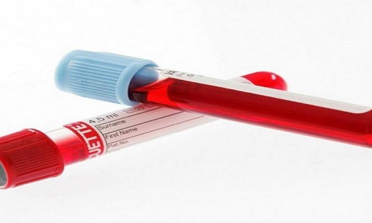 اختبار فرنسى بسيط للدم لتشخيص سرطان الرئة