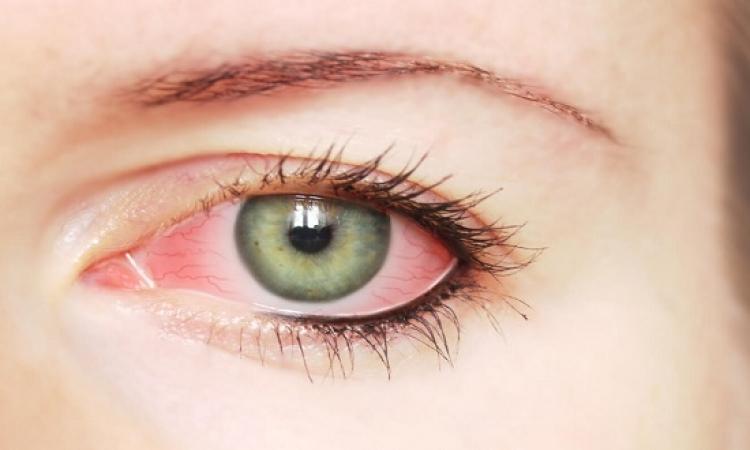 تغلب على جفاف العين الناتج عن ارتفاع حرارة الجو