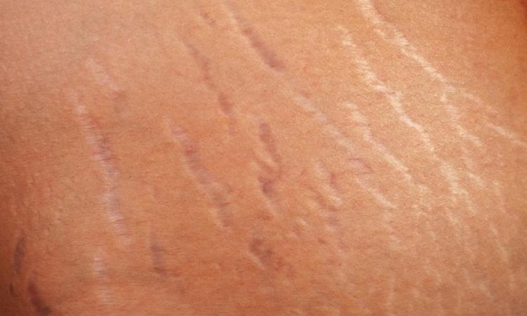 وصفة طبيعية فعالة للتخلص من الـstretch marks