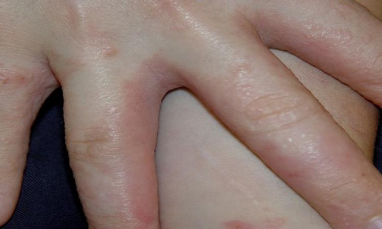 احذر.. جفاف الجلد وتشققه قد يعرضك للإصابة بالبكتيريا والفطريات