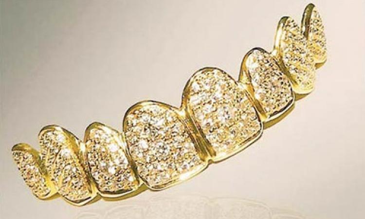 ثمنه 153 ألف دولار .. تصنيع أغلى طقم أسنان في العالم بدبي