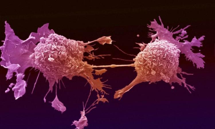 الجديد فى عالم الطب.. تقنية لعلاج سرطان البروستاتا