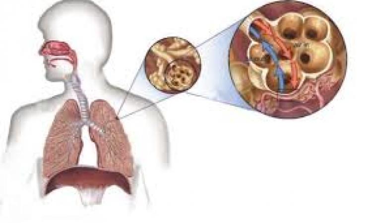 اختبار تنفسي أولي يكشف الإصابة بالسل