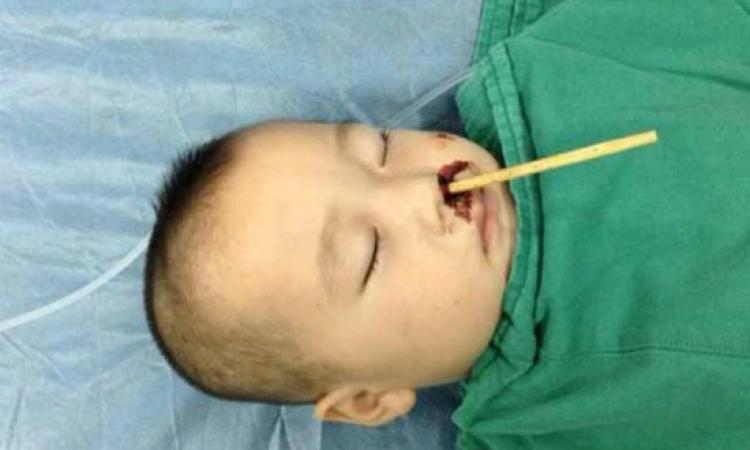 طفل صيني ينجو من الموت بعد اختراق عصاة الطعام دماغه