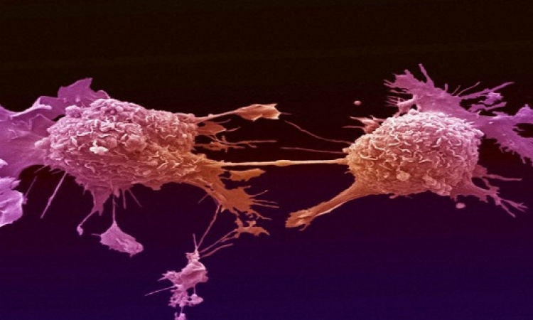 اختراع أنابيب مجهرية يمكنها كشف وتدمير الخلايا السرطانية