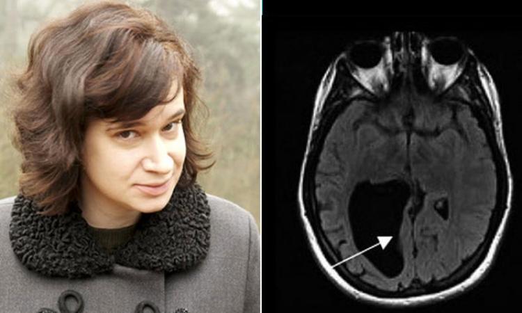 اكتشاف ثقب كبير في دماغ امرأة .. عملتها ازاى دى