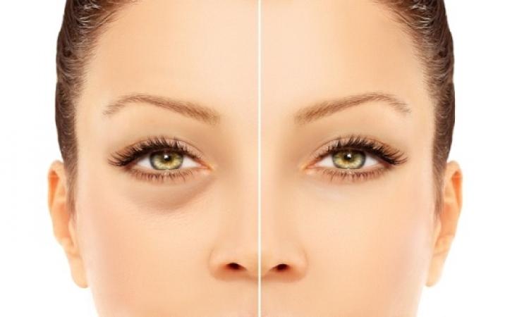 كيف تتخلصى من تورم وانتفاخ جفون العينين؟