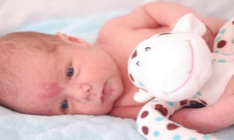 متى تظهر وحمات الطفل وكيفية العلاج؟!
