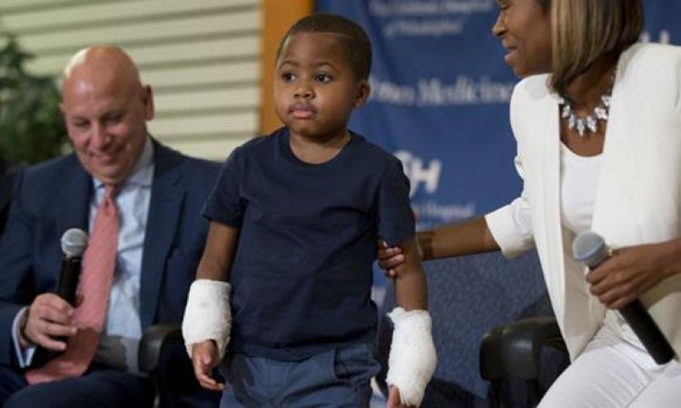 بالصور.. ثورة طبية جديدة.. هارفى أول طفل يزرع له يدين جديدين فى العالم