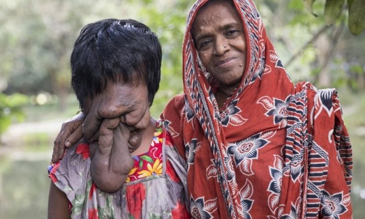 بالصور .. فتاة تعيش دون وجه .. حاجة صعبة !!