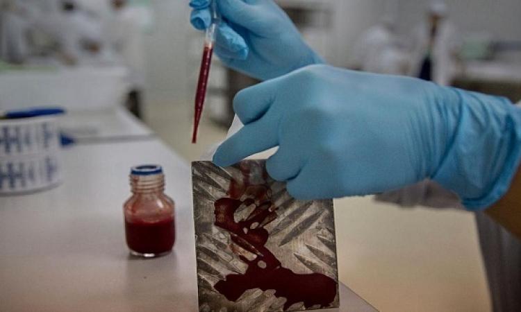 ليزر الدماء .. للعثور على الأورام فى الجسم
